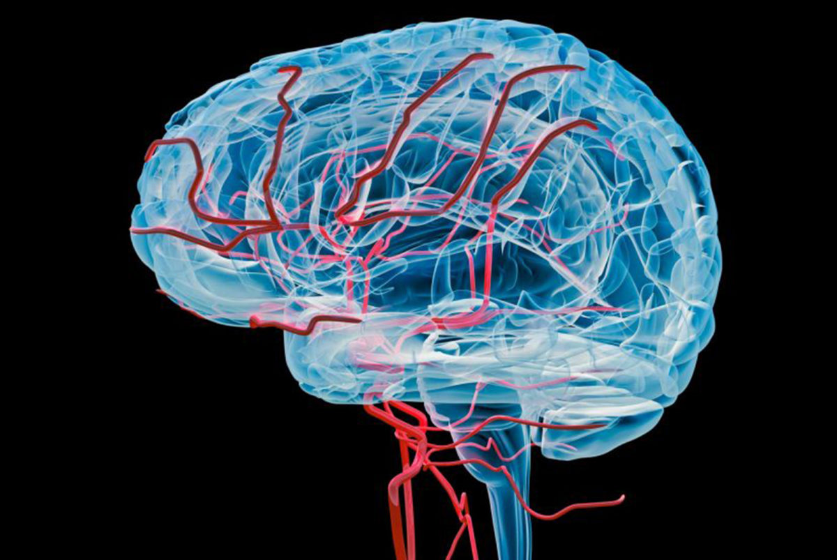 brain-vessels-1200x803.jpg